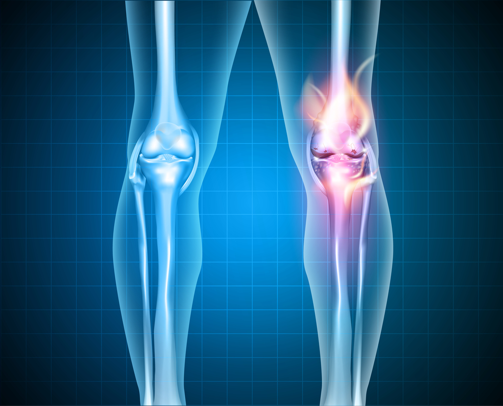 Knee Arthritis Treatment - Osteoarthritis Symptoms, Causes, Advice