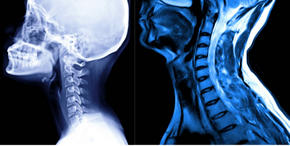 X-ray and MRI scans of the neck