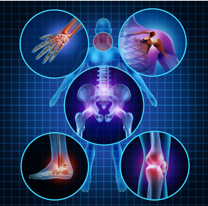 Areas of the body that prolotherapy can treat