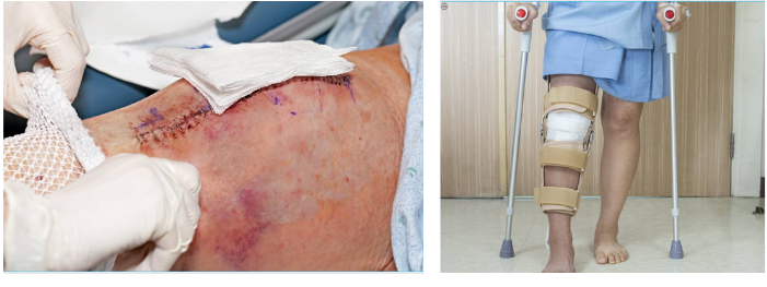 An image of after knee cartilage surgery