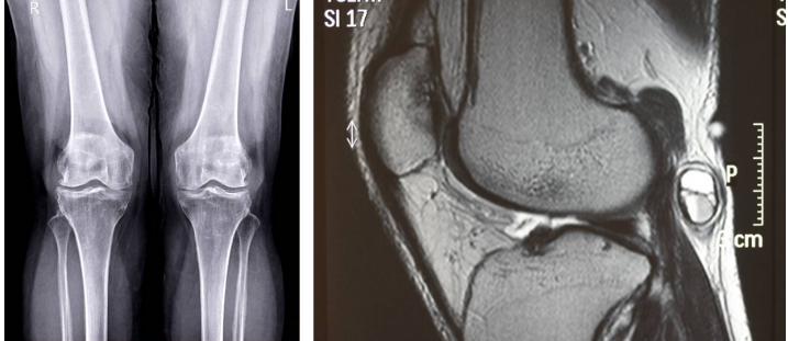 A scan of knee cartilage damage