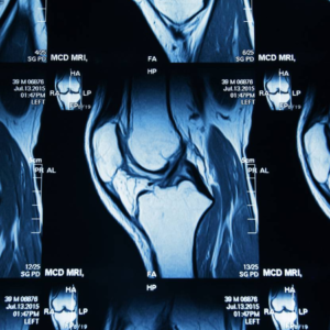 An MRI of knee