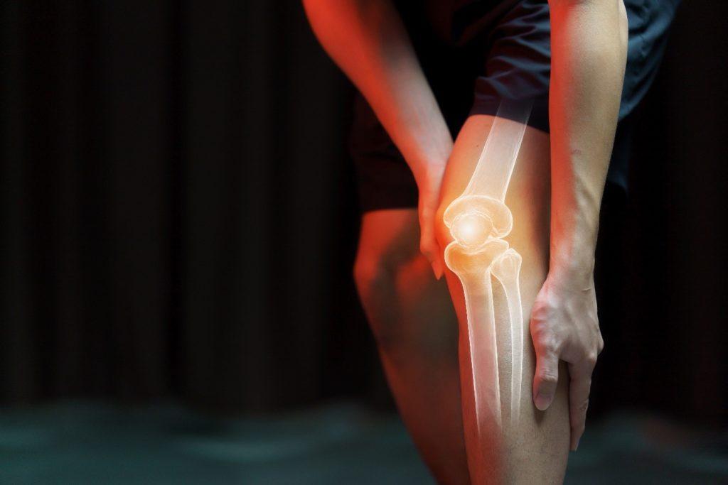 A knee needing an Osteochondral Allograft