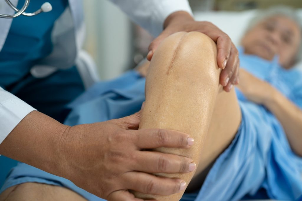 Knee examination after Osteochondral Allograft operation