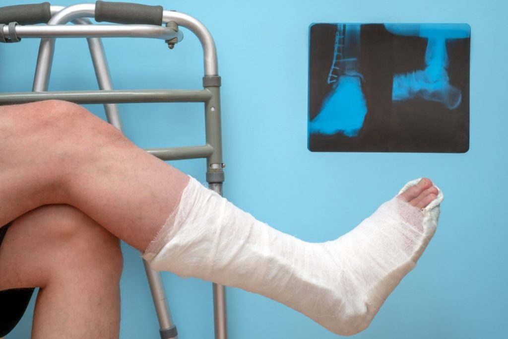 A foot and ankle in a cast